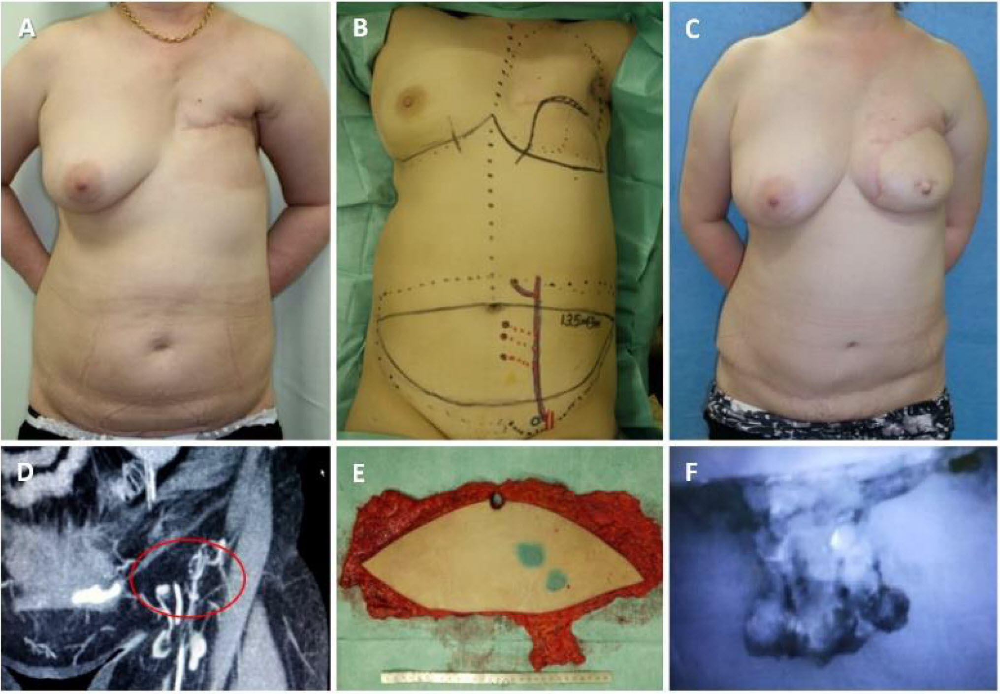 Post chemotherapy and radiation. Lymphaticovenular anastomoses were  performed formerly in her left dorsum of hand (A). DIEP flap with lymph ...